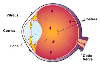black spots in vision