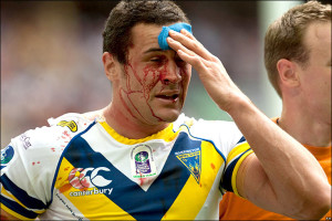 rugby head injury